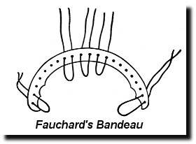 Fauchard's Bandeau, the first pair of braces ever ca. 1769